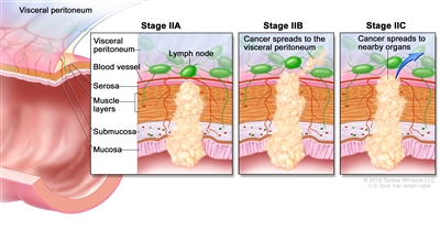 Stage II colorectal cancer; drawing shows a cross-section of the colon/rectum and a three-panel inset. Each panel shows the layers of the colon/rectum wall: the mucosa, submucosa, muscle layers, and serosa. Also shown are a blood vessel and lymph nodes. The first panel shows stage IIA with cancer in the mucosa, submucosa, muscle layers, and serosa. The second panel shows stage IIB with cancer in all layers and spreading through the serosa to the visceral peritoneum. The third panel shows stage IIC with cancer in all layers and spreading through the serosa to nearby organs.